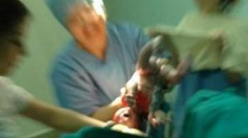 Ölü Doğum Nedenleri ve Riskleri
